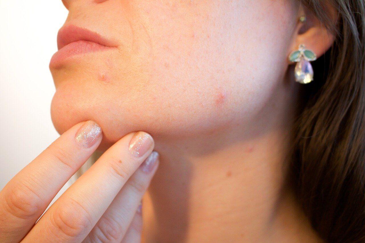 comment atténuer une cicatrice naturellement - cicatrice acné - pranaloe boutique en ligne de cosmétiques bio