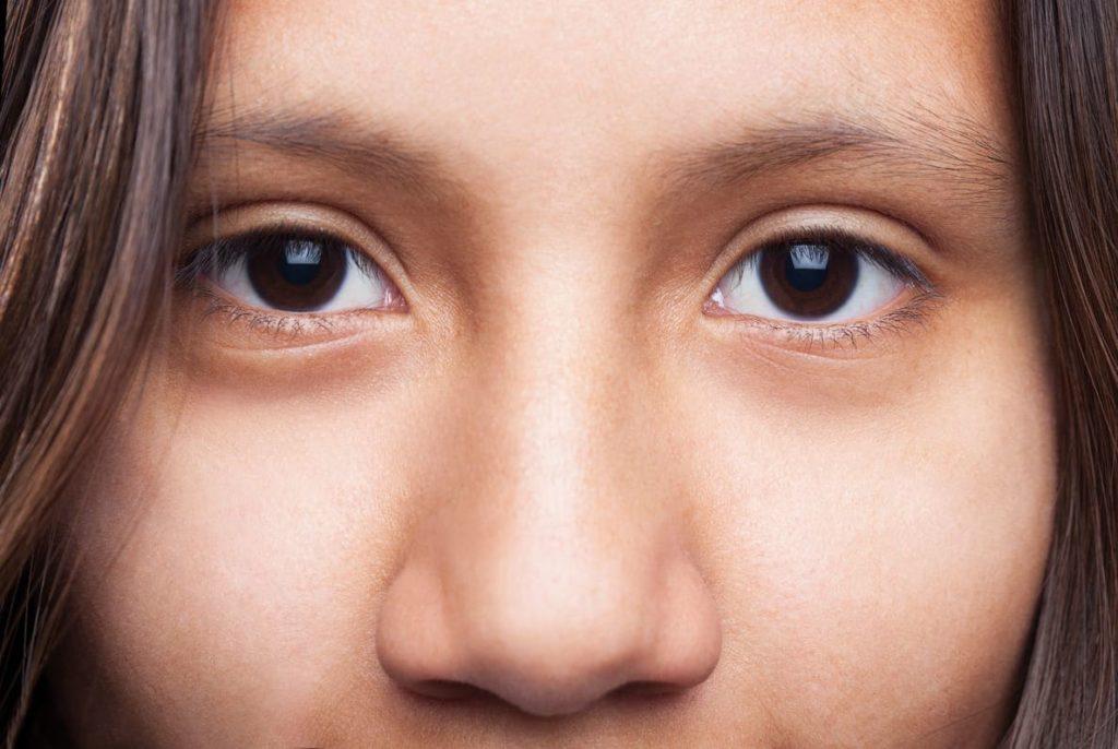 poches et cernes sous les yeux - que faire - pranaloe - eshop soin anticerne bio